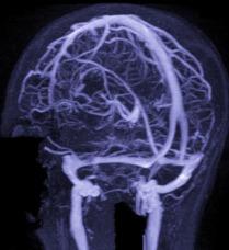 что покажет МРТ головного мозга