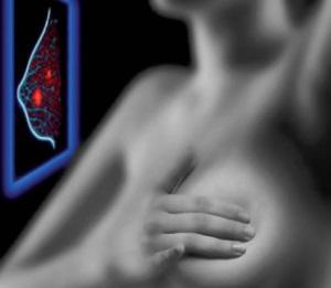 Магнитно-резонансная томография груди