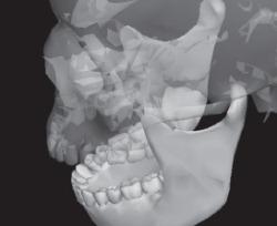 МРТ зубов со штифтами