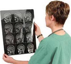 Заключение МРТ