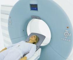 Магнитно-резонансная томография сосудов
