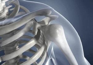 Сделать МРТ плеча